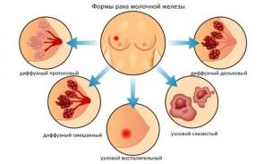 рак молочной железы