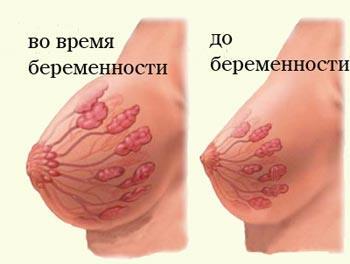 грудь до и при беременности схема