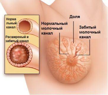 схема лактостаза