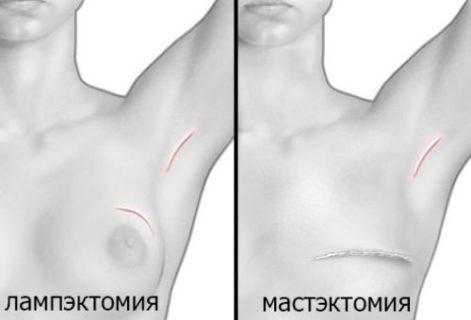 операция при раке молочной железы