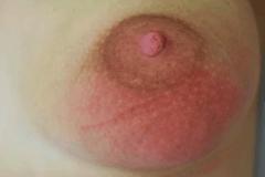 покраснения на молочной железе