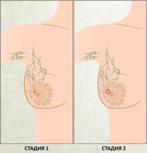 1 и 2 стадия рака молочной железы