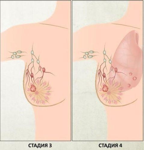 рак молочной железы стадии