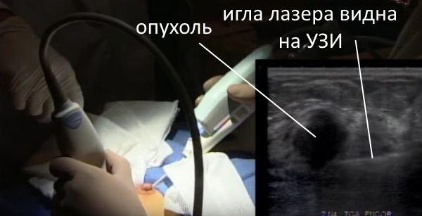 лазерная абляция удаление фиброаденомы
