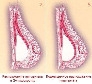 силиконовая грудь расположение имплантов