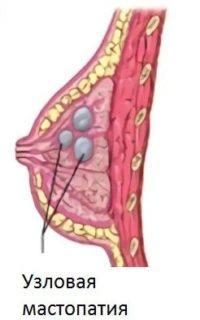 узловая мастопатия фиброаденома
