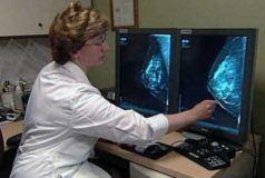 маммография с помощью компьютерных программ