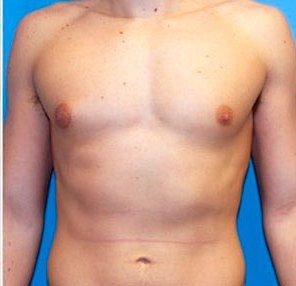 здоровые молочные железы у мужчины