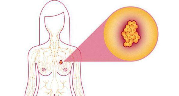 формы аденоза молочной железы