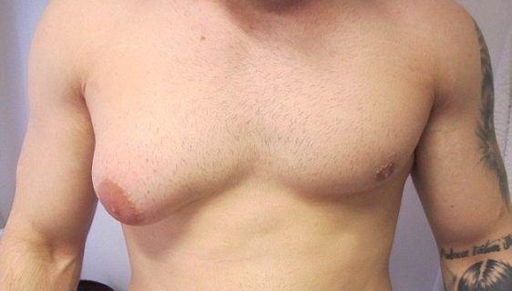 гинекомастия сильное увеличение молочной железы