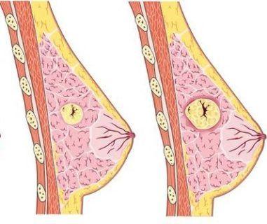 локализованная мастопатия
