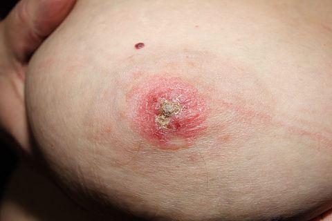 рак Педжета молочной железы