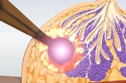 радиотерапия молочной железы схема