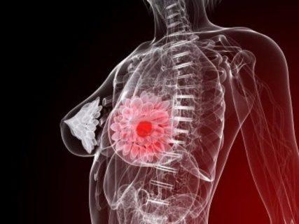 Маммография 4