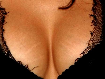 Устраняет растяжки груди