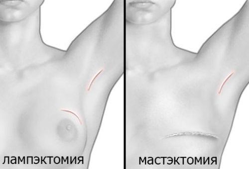 операция на молочной железе