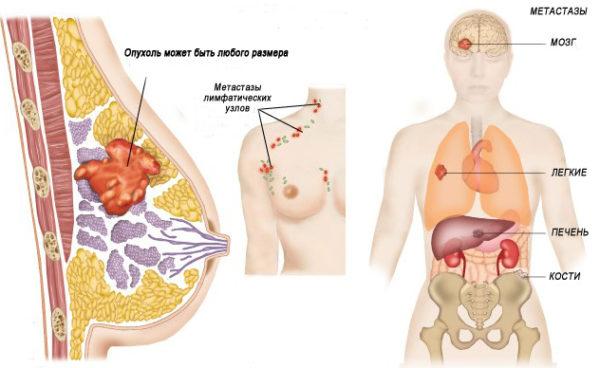 метастазы в органы