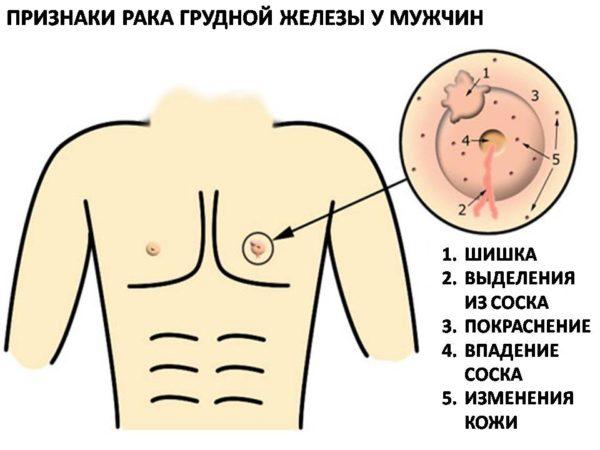 Признаки рака груди у мужчин
