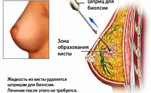 лечение кисты