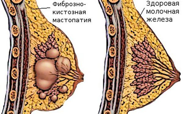 как выглядит фиброзно-кистозная мастопатия