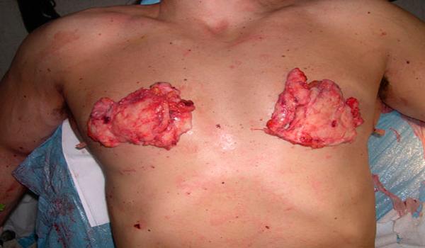 операция при гинекомастии