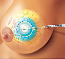 Лучевая внутренняя терапия при раке груди