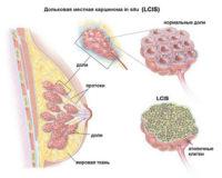 дольковая карцинома молочной железы