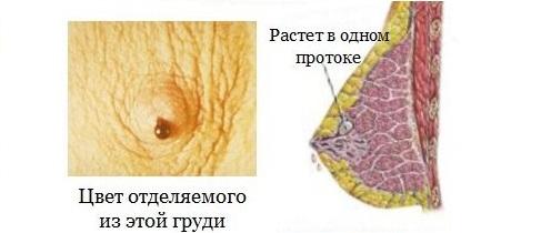симптомы папилломы в груди
