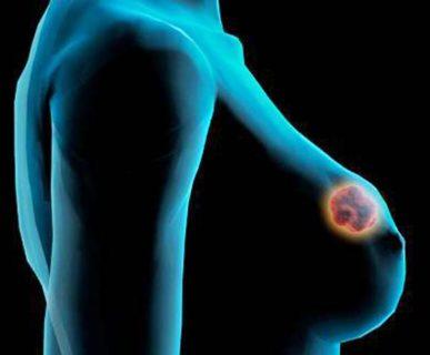 узловое злокачественное образование в груди