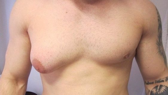 гинекомастия одной молочной железы