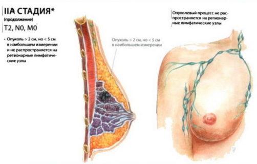 2а стадия рака молочной железы