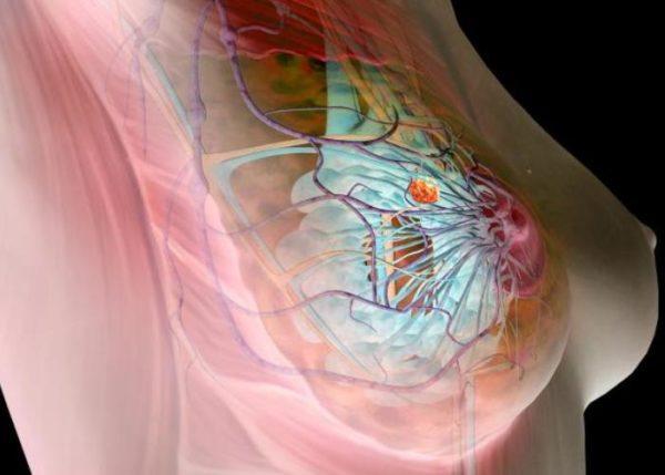 узловой рак молочной железы