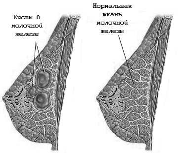 Кисты в груди