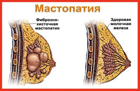 Фиброзно-кистозная мастопатия груди