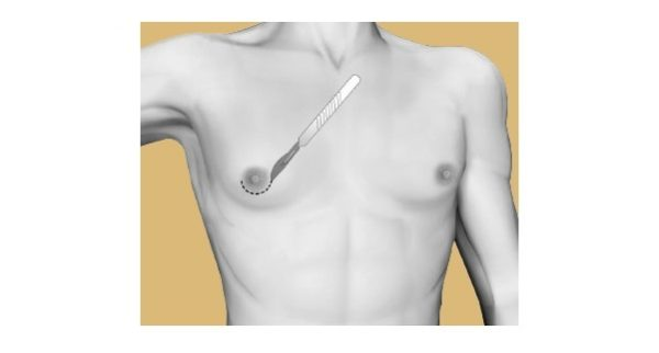 гинекомастия операция