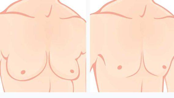 Появление гинекомастии