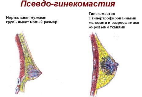 псевдо-гинекомастия