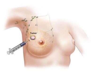Пунктирование в груди