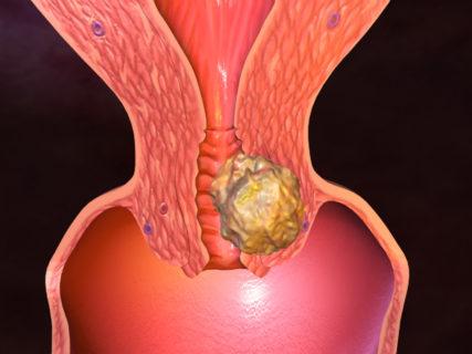 онкологическое заболевание половых органов повышает риск развития фиброаденомы в молочной железы