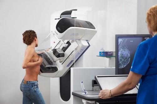 маммография молочных желез