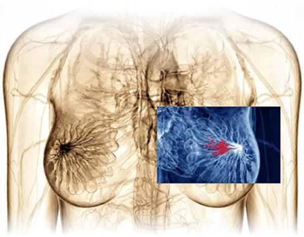 гормонозависимая опухоль молочной железы