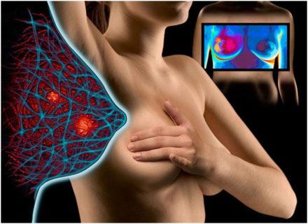 Диагностика груди