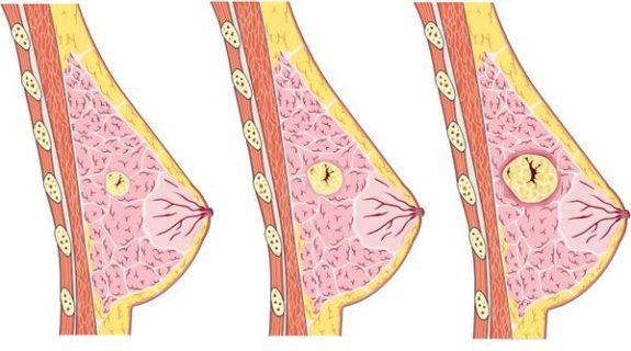 Проявление мастопатии