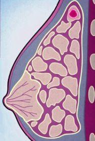 инвазивный дольковый рак молочной железы
