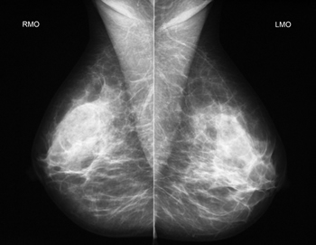 при маммографии проверяют обе груди