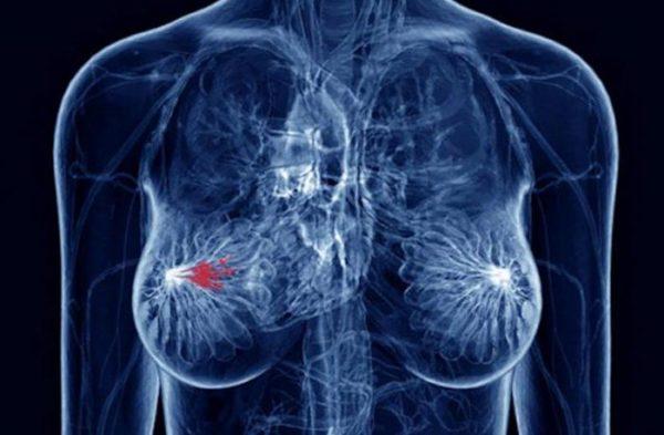 узловая мастопатия в молочной железе