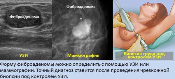методы диагностики фиброаденомы молочной железы