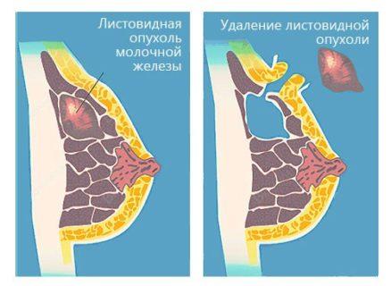 Филлоидная фиброаденома