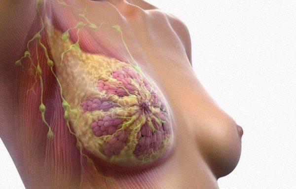 Трижды негативный рак груди
