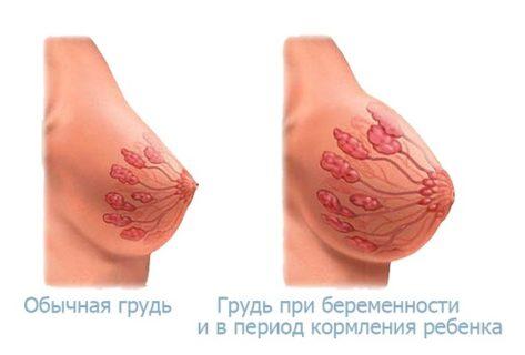 увеличение размера груди во время беременности